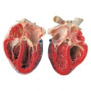 KÖRPERWELTEN – Eine Herzenssache – Blutspendeaktion