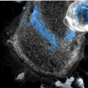 Forscher entschlüsseln die Fähigkeiten von Riesenzellen im Immunsystem