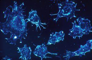 cancer-cells-541954_1920_Skeeze_Pixabay