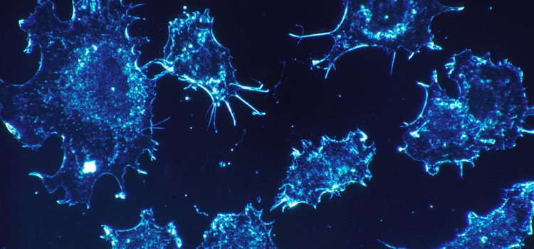 Wird Methadon bald als Krebsmedikament eingesetzt?