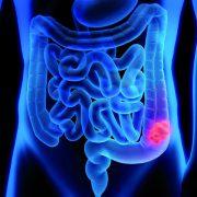 Effektive Prävention gegen Darmkrebs, Nachsorge und Naturheilkunde