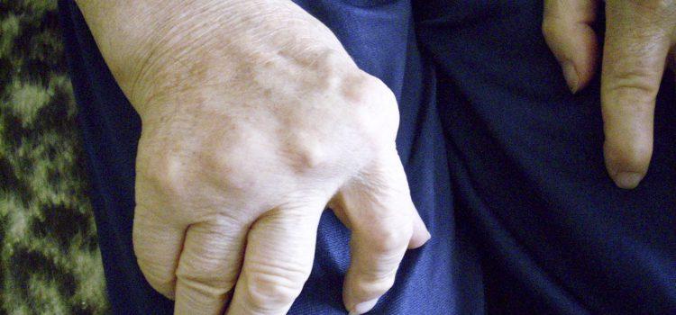 Erhöht die Kusskrankheit das Rheuma-Risiko?